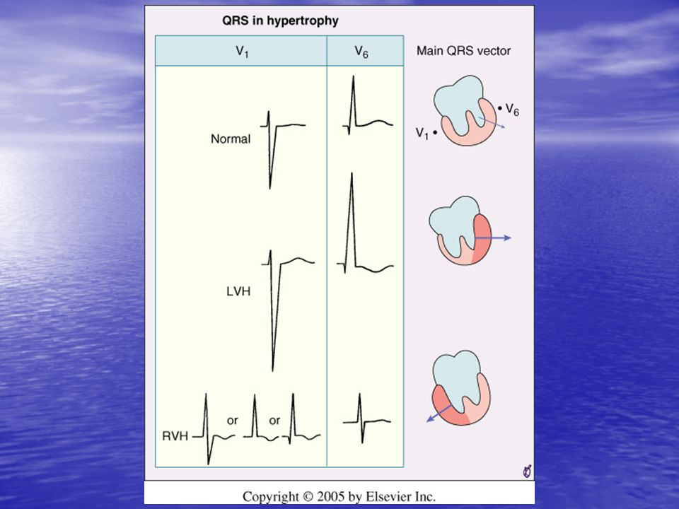 <b>FIGURE 9-19</b> Left ventricular hypertrophy (LVH) increases the amplitude of electrical forces directed to the left and posteriorly.