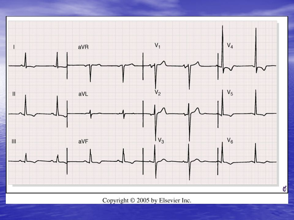 <b>FIGURE 9-20</b> Marked left ventricular hypertrophy (LVH) pattern with prominent precordial lead QRS voltages.