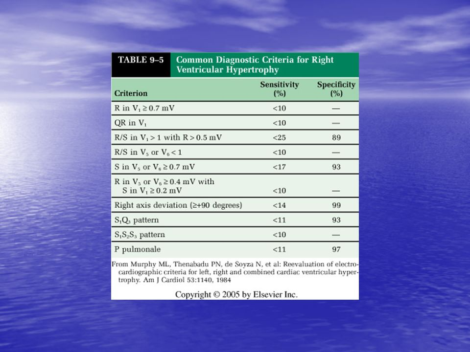 <b>TABLE 9-5</b> Common Diagnostic Criteria for Right Ventricular Hypertrophy