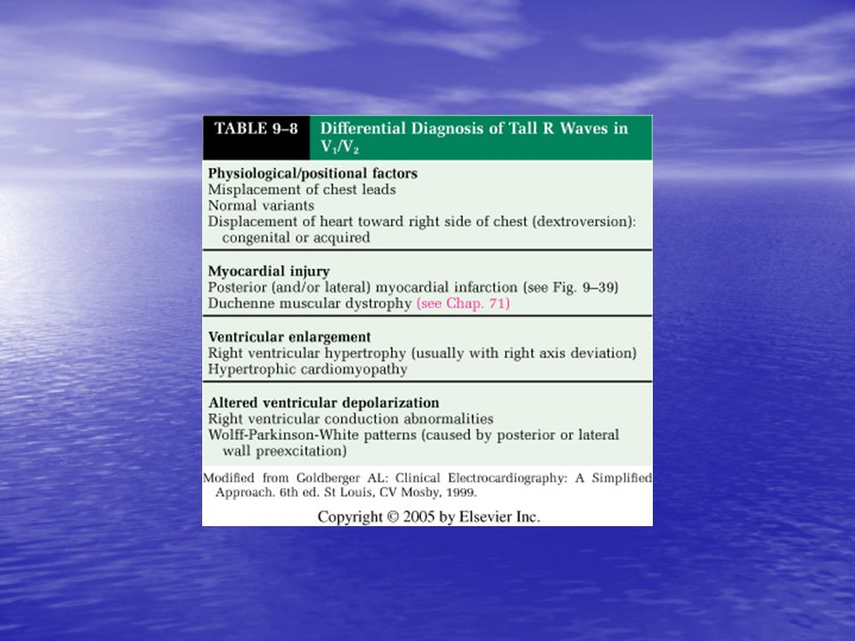 <b>TABLE 9-8</b> Differential Diagnosis of Tall R Waves in V<sub>1</sub>/ V<sub>2</sub>