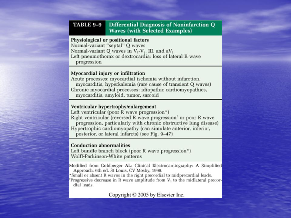 <b>TABLE 9-9</b> Differential Diagnosis of Noninfarction Q Waves (with Selected Examples)