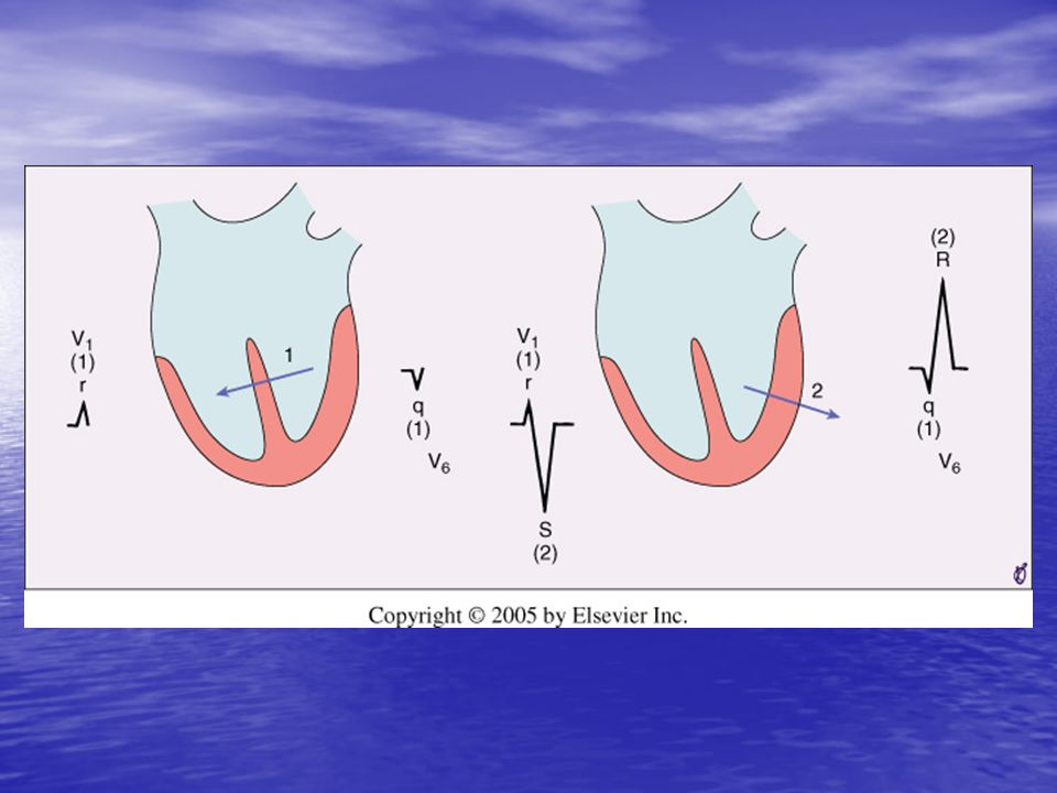 <b>FIGURE 9-14</b> Schematic representation of ventricular depolarization as two sequential vectors representing septal <b>(left)</b> and left ventricular free wall <b>(right)</b> activation.