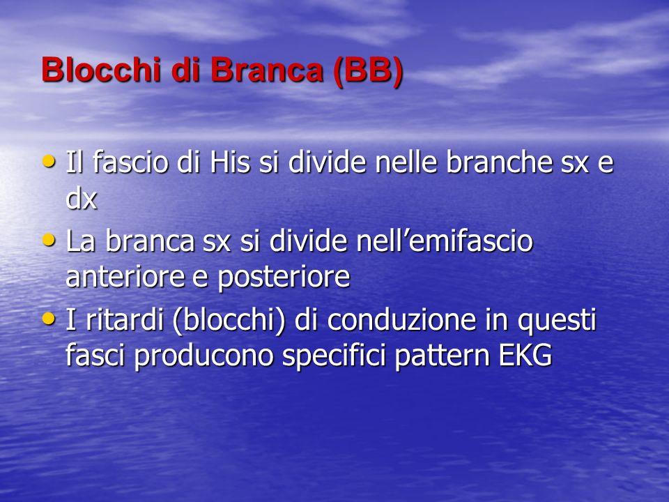 Blocchi di Branca (BB) Il fascio di His si divide nelle branche sx e dx. La branca sx si divide nell'emifascio anteriore e posteriore.