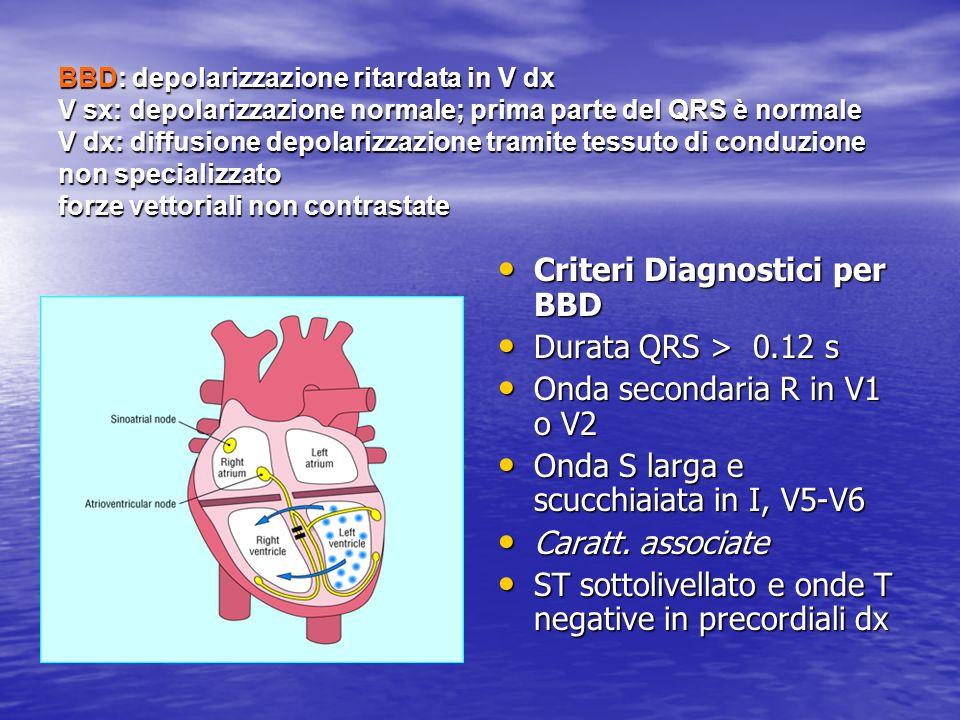 Criteri Diagnostici per BBD Durata QRS > 0.12 s