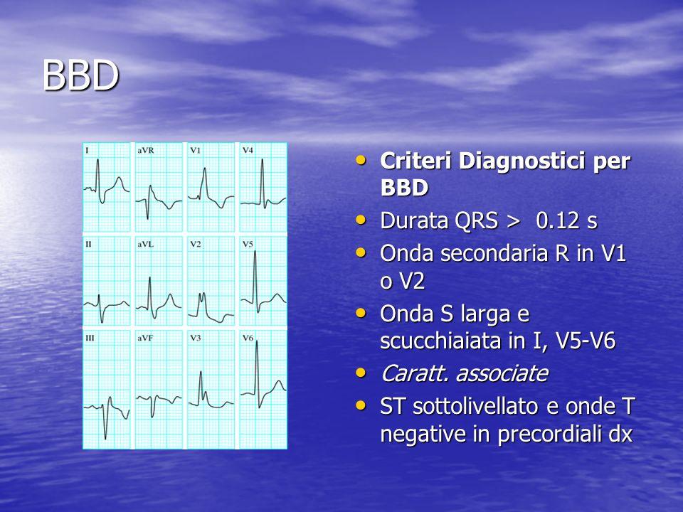 BBD Criteri Diagnostici per BBD Durata QRS > 0.12 s