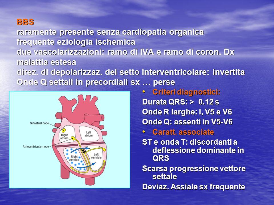 BBS raramente presente senza cardiopatia organica frequente eziologia ischemica due vascolarizzazioni: ramo di IVA e ramo di coron. Dx malattia estesa direz. di depolarizzaz. del setto interventricolare: invertita Onde Q settali in precordiali sx … perse