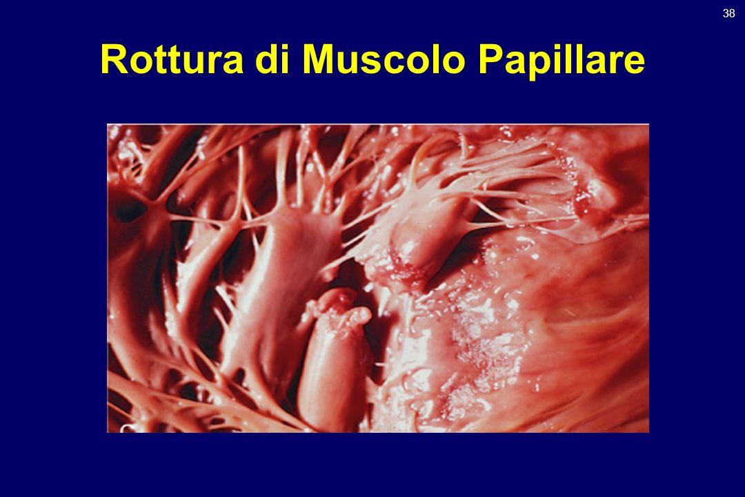 Rottura di Muscolo Papillare