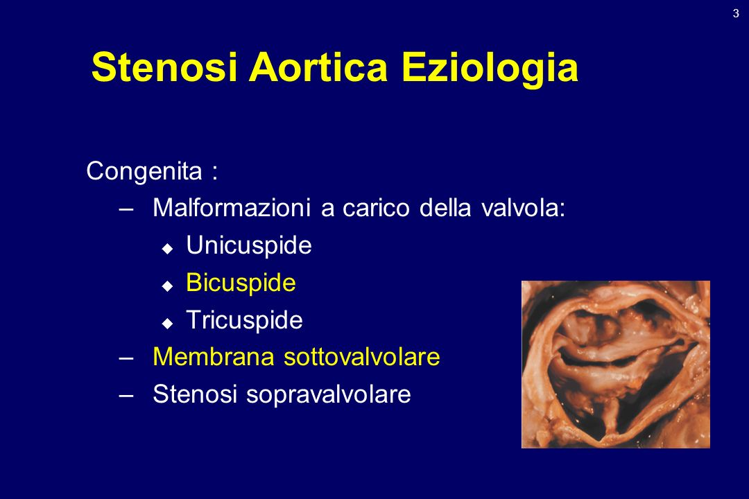 Stenosi Aortica Eziologia