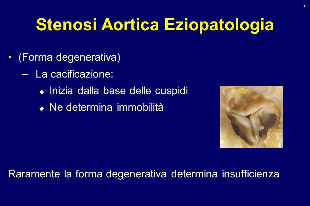 Stenosi Aortica Eziopatologia