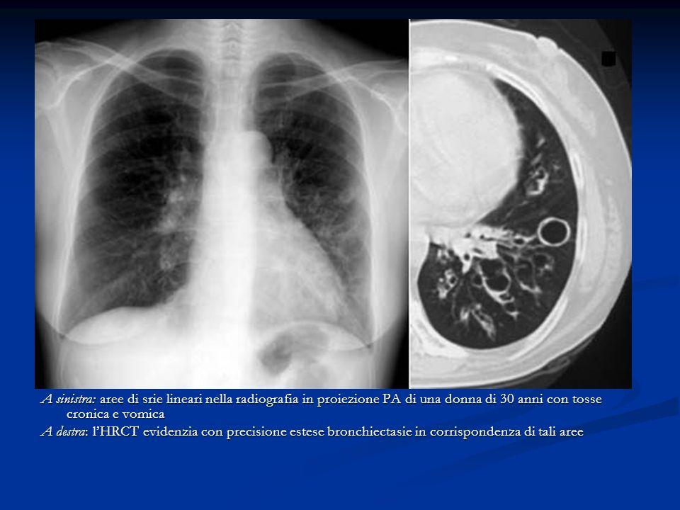 A sinistra: aree di srie lineari nella radiografia in proiezione PA di una donna di 30 anni con tosse cronica e vomica