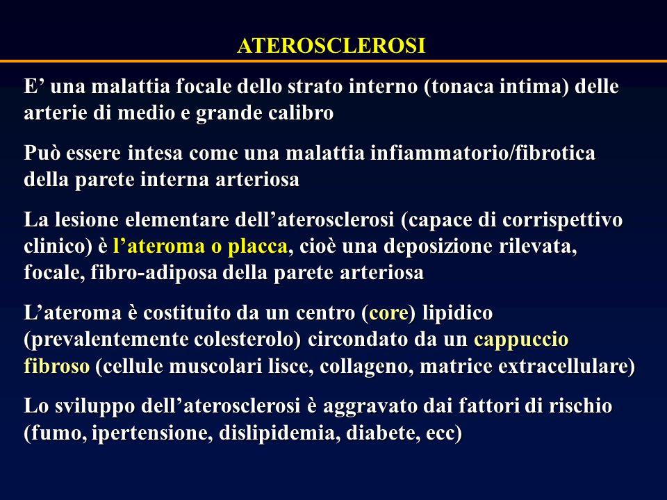 ATEROSCLEROSI E' una malattia focale dello strato interno (tonaca intima) delle arterie di medio e grande calibro.