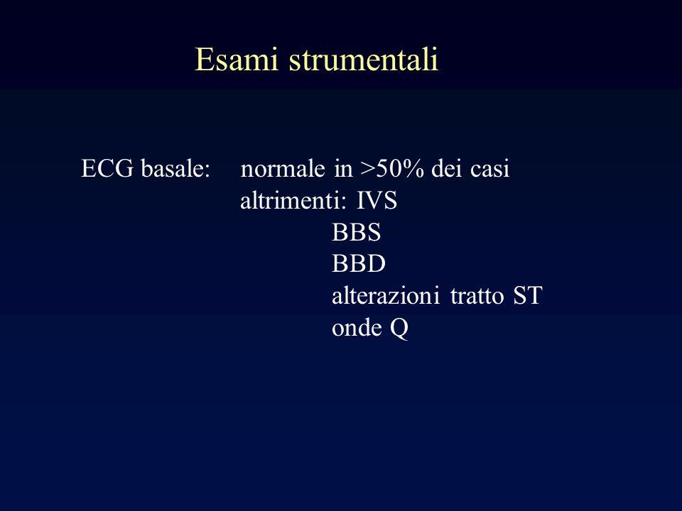 Esami strumentali ECG basale: normale in >50% dei casi