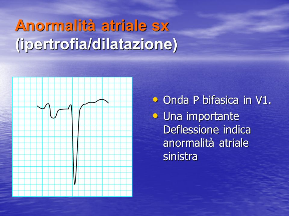 Anormalità atriale sx (ipertrofia/dilatazione)