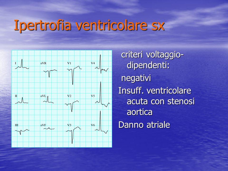 Ipertrofia ventricolare sx