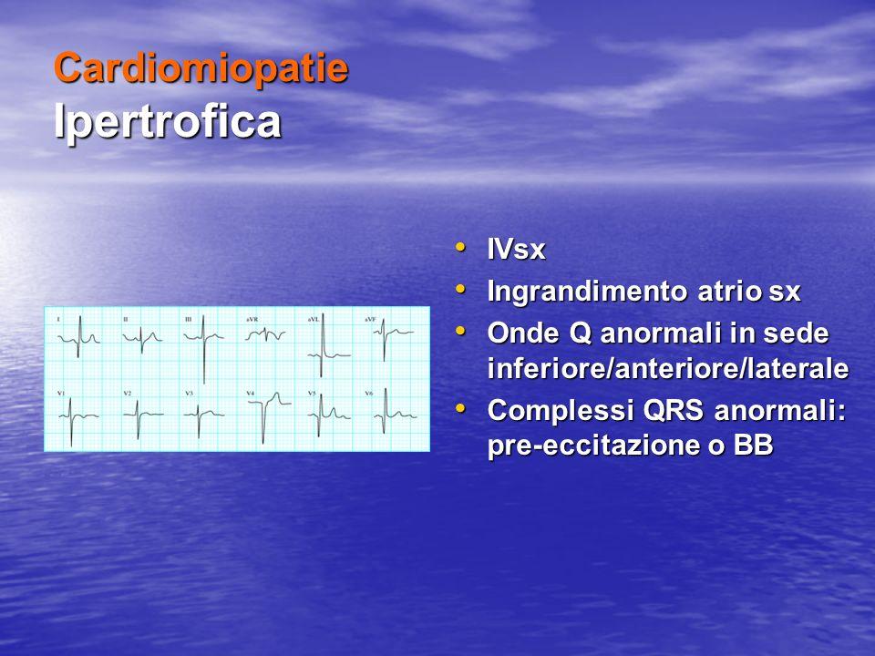Cardiomiopatie Ipertrofica