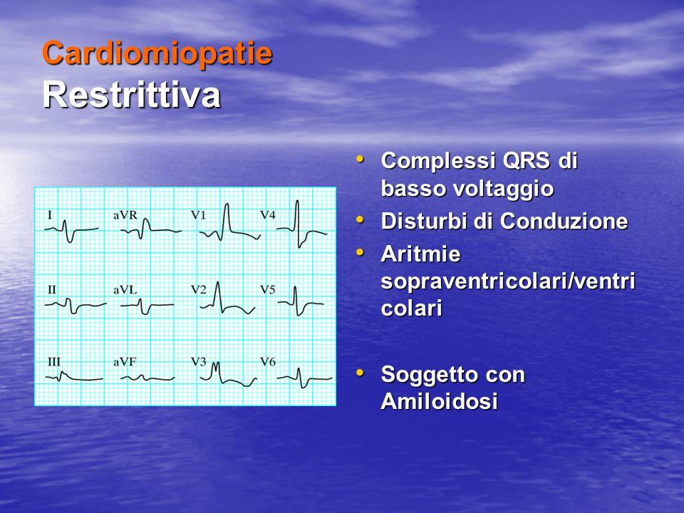 Cardiomiopatie Restrittiva