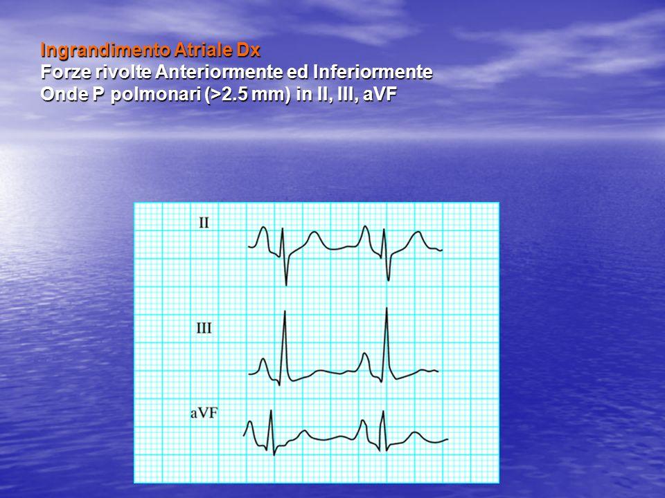 Ingrandimento Atriale Dx Forze rivolte Anteriormente ed Inferiormente Onde P polmonari (>2.5 mm) in II, III, aVF