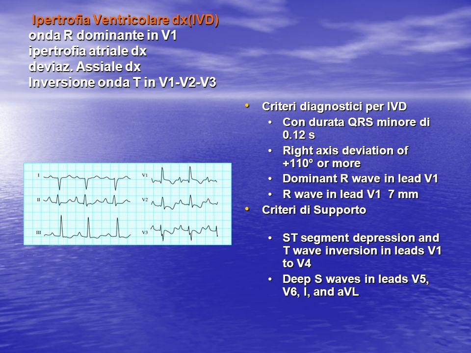 Ipertrofia Ventricolare dx(IVD) onda R dominante in V1 ipertrofia atriale dx deviaz. Assiale dx Inversione onda T in V1-V2-V3