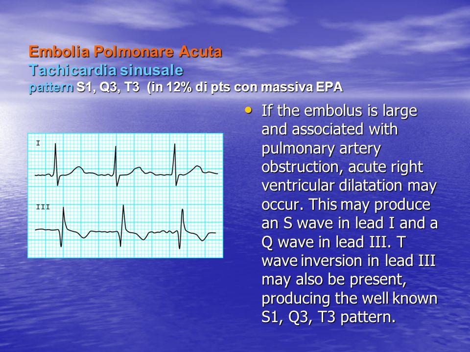 Embolia Polmonare Acuta Tachicardia sinusale pattern S1, Q3, T3 (in 12% di pts con massiva EPA