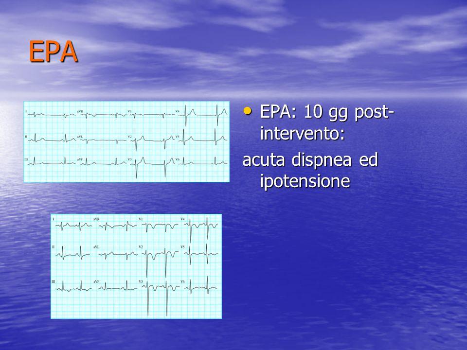 EPA EPA: 10 gg post-intervento: acuta dispnea ed ipotensione
