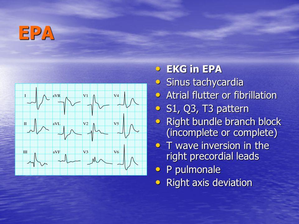 EPA EKG in EPA Sinus tachycardia Atrial flutter or fibrillation