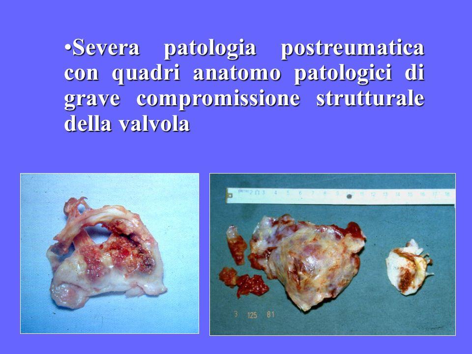 Severa patologia postreumatica con quadri anatomo patologici di grave compromissione strutturale della valvola
