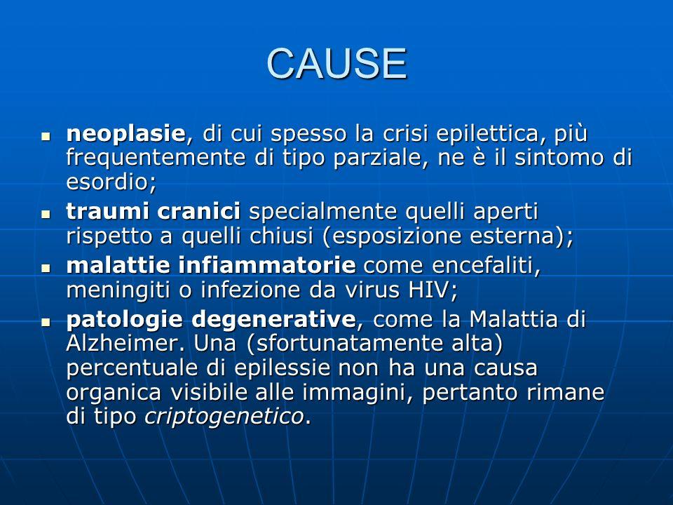 CAUSE neoplasie, di cui spesso la crisi epilettica, più frequentemente di tipo parziale, ne è il sintomo di esordio;