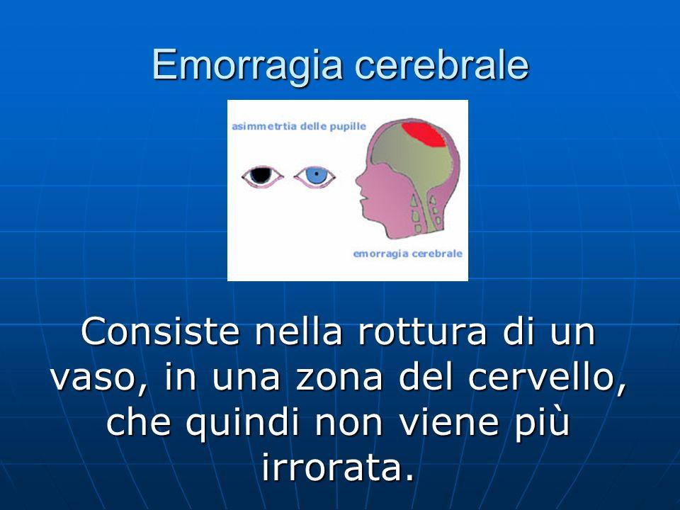 Emorragia cerebrale Consiste nella rottura di un vaso, in una zona del cervello, che quindi non viene più irrorata.