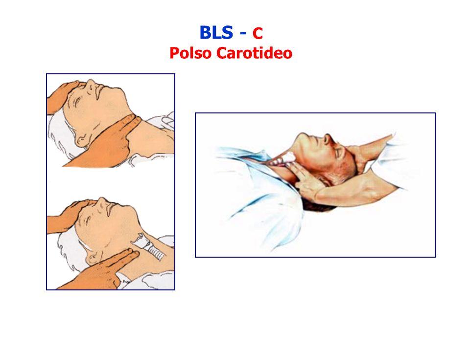 BLS - C Polso Carotideo