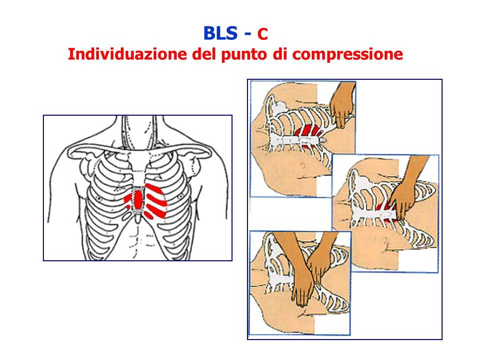 BLS - C Individuazione del punto di compressione