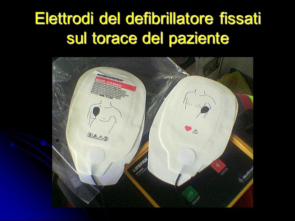 Elettrodi del defibrillatore fissati sul torace del paziente