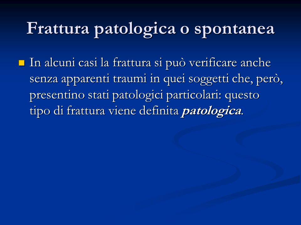 Frattura patologica o spontanea