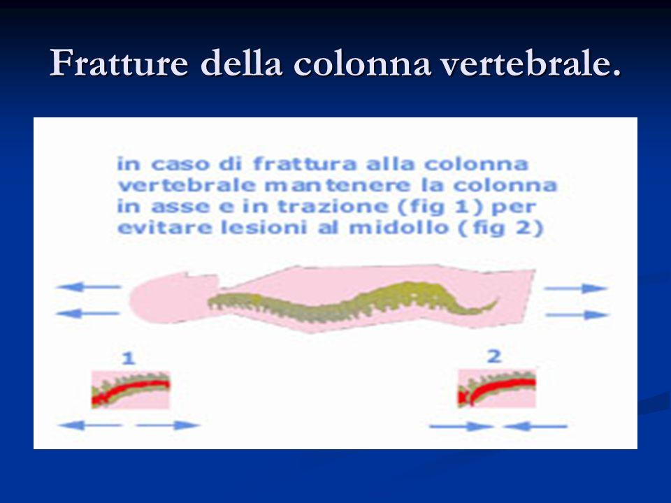 Fratture della colonna vertebrale.