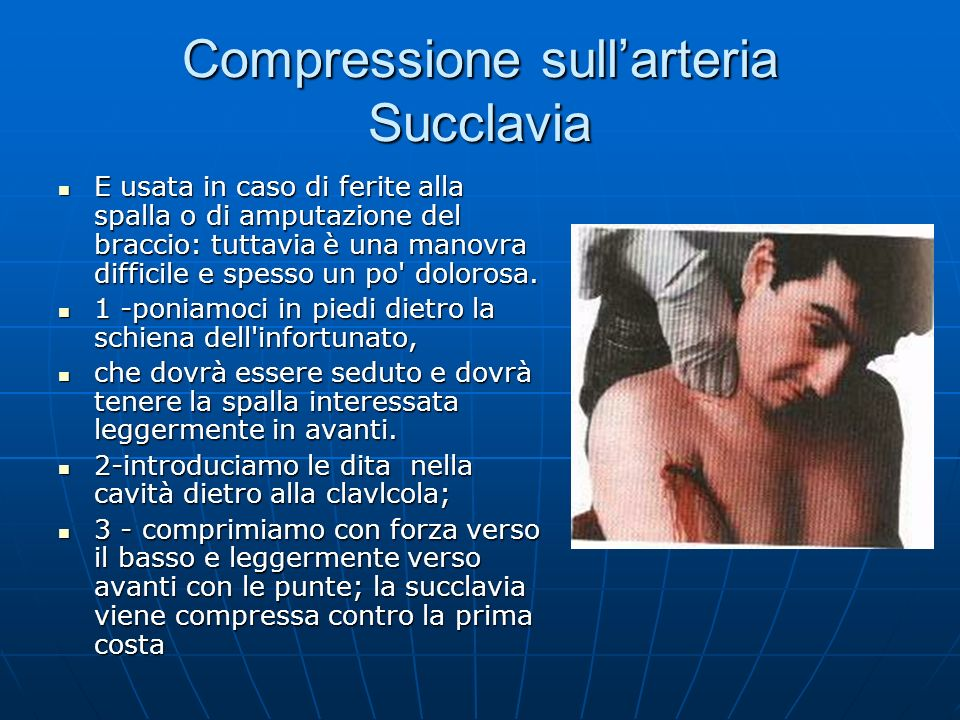 Compressione sull'arteria Succlavia