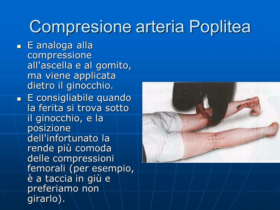 Compresione arteria Poplitea