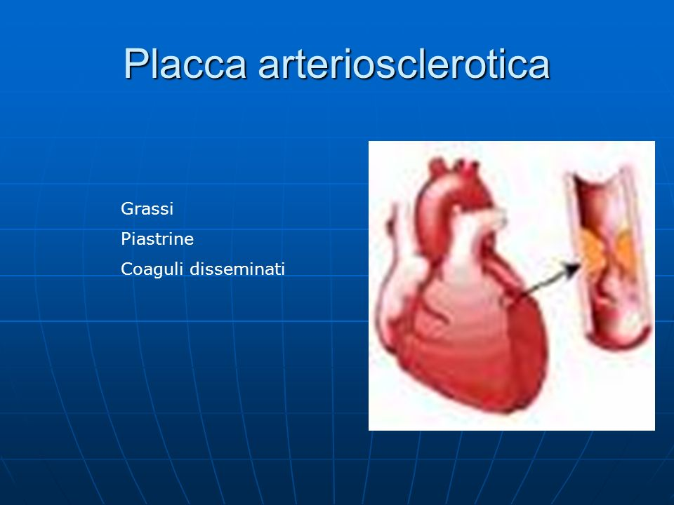Placca arteriosclerotica