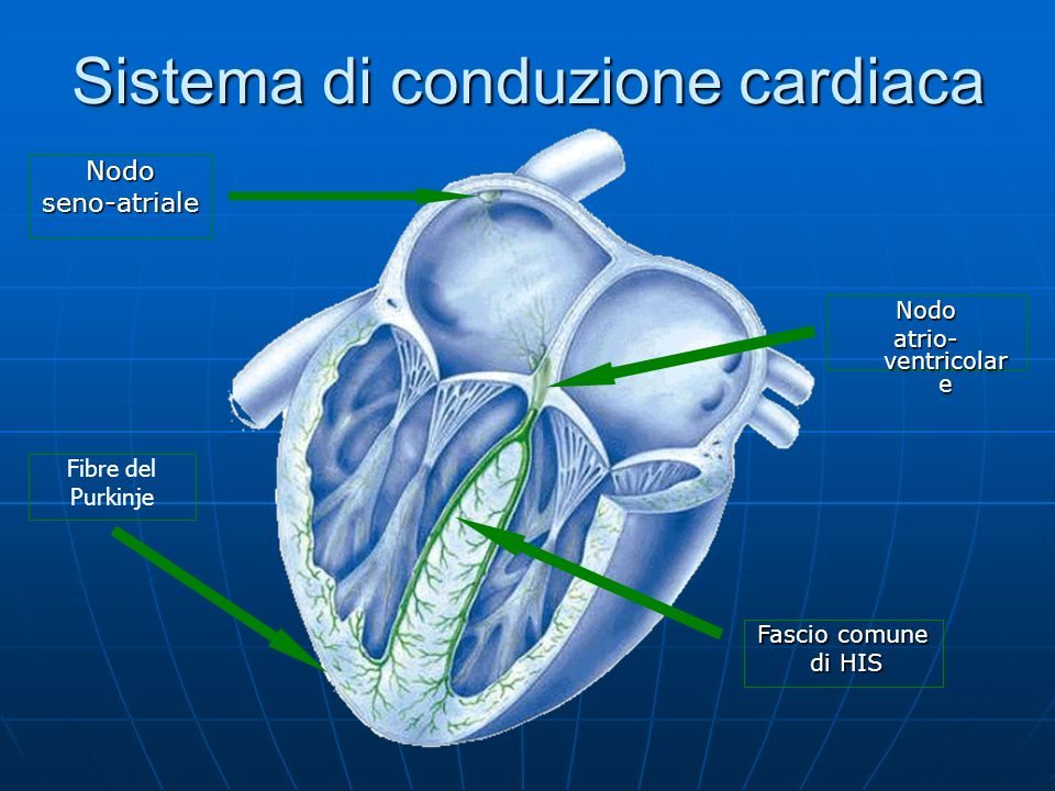 Sistema di conduzione cardiaca