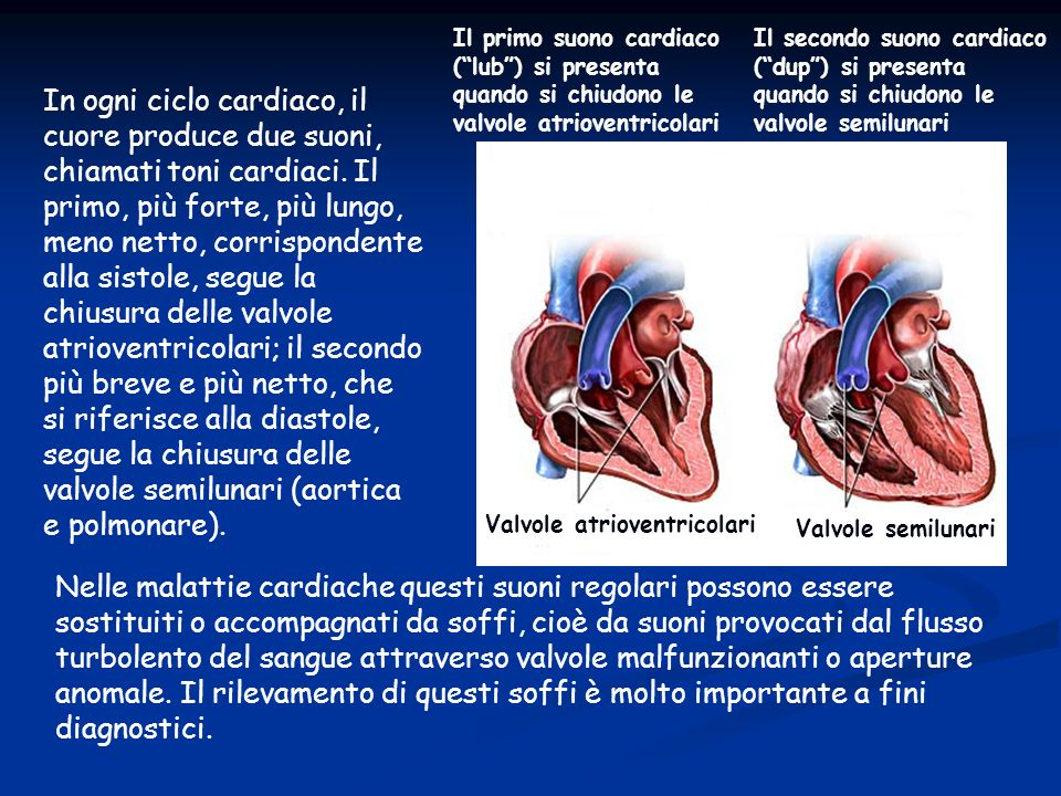 segue la chiusura delle valvole semilunari (aortica e polmonare).