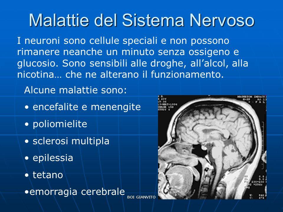 Malattie del Sistema Nervoso