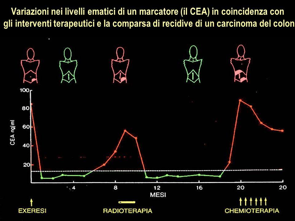 Variazioni nei livelli ematici di un marcatore (il CEA) in coincidenza con