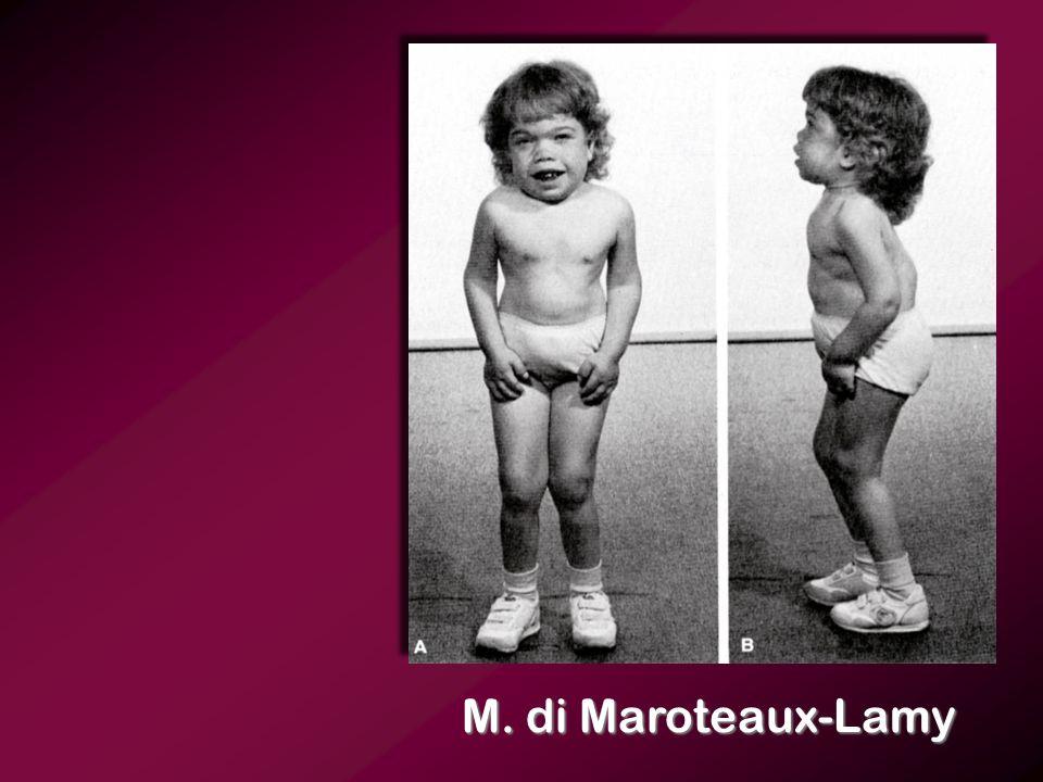 M. di Maroteaux-Lamy