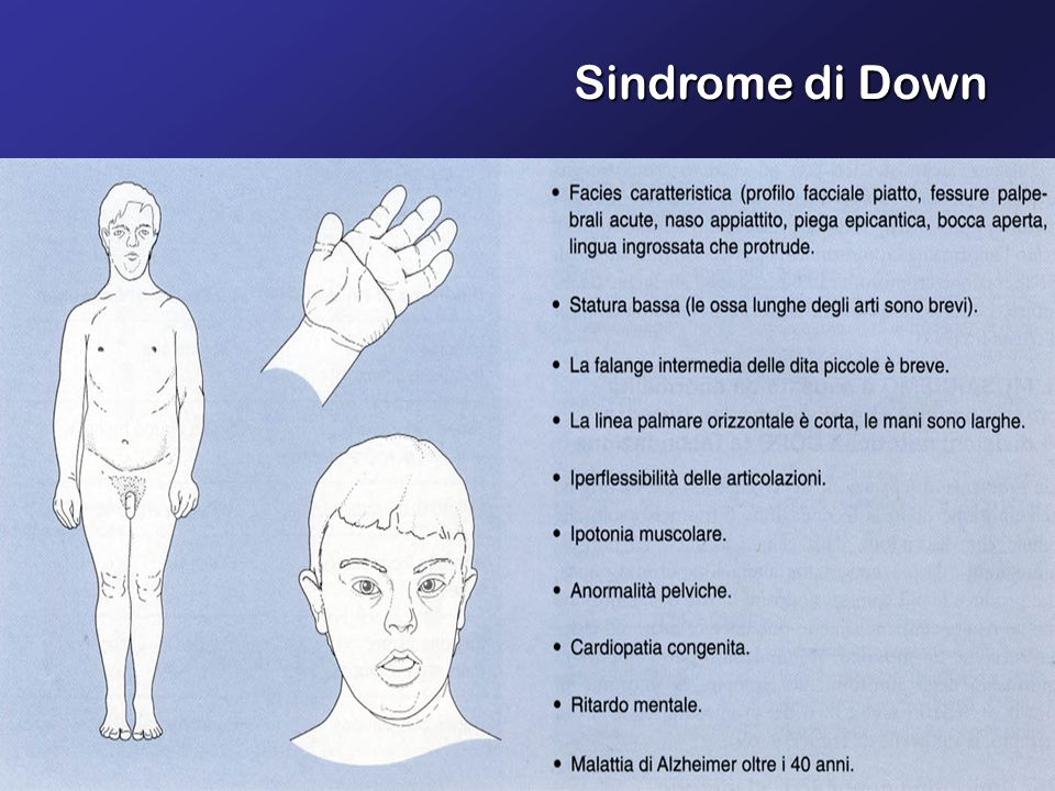 Sindrome di Down
