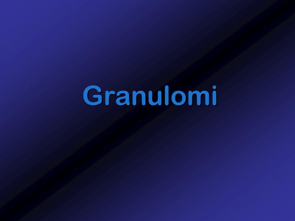 Granulomi