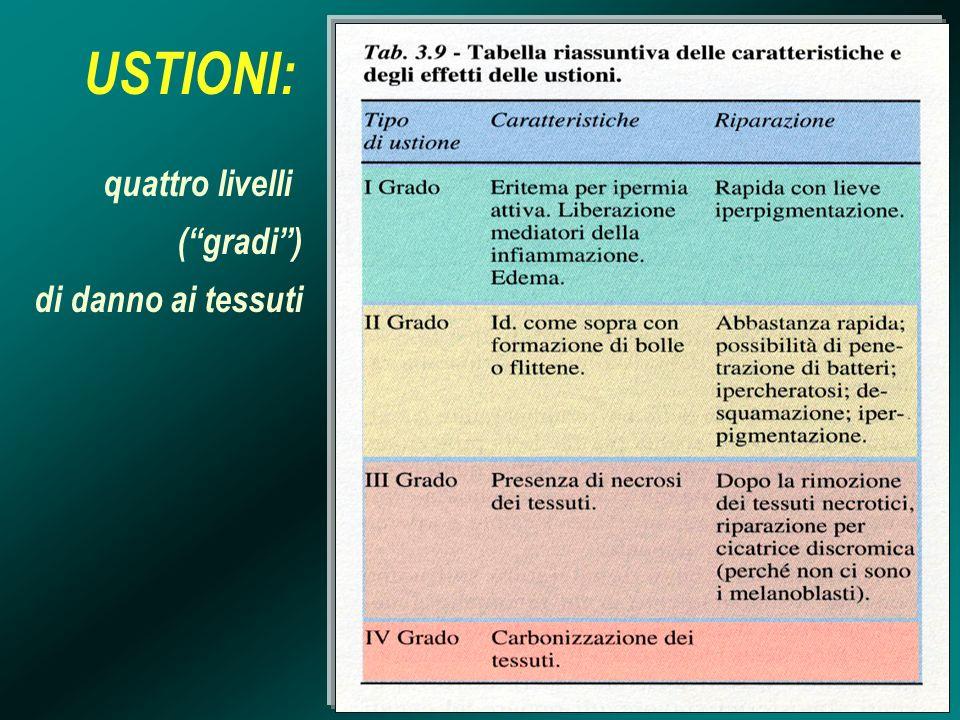 USTIONI: quattro livelli ( gradi ) di danno ai tessuti