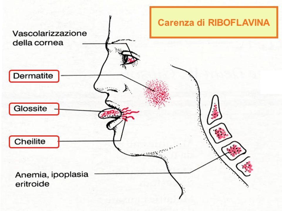 Carenza di RIBOFLAVINA