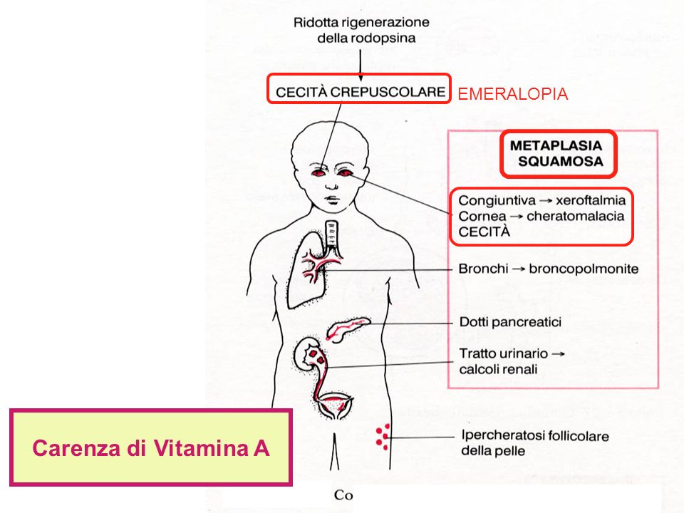 EMERALOPIA Carenza di Vitamina A