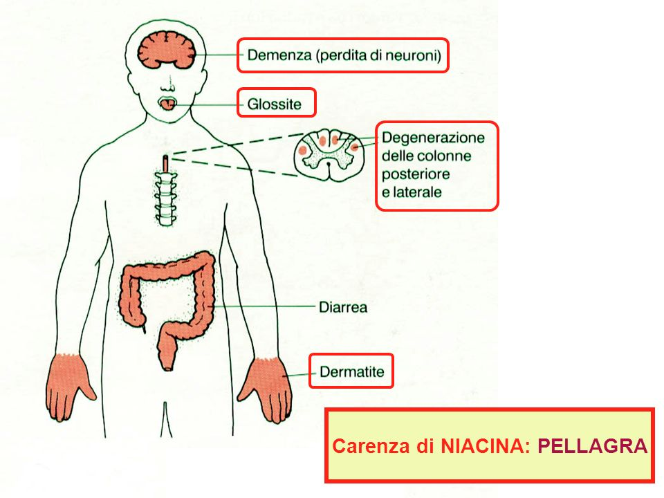 Carenza di NIACINA: PELLAGRA