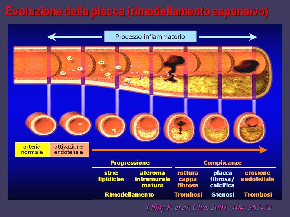 Evoluzione della placca (rimodellamento espansivo)