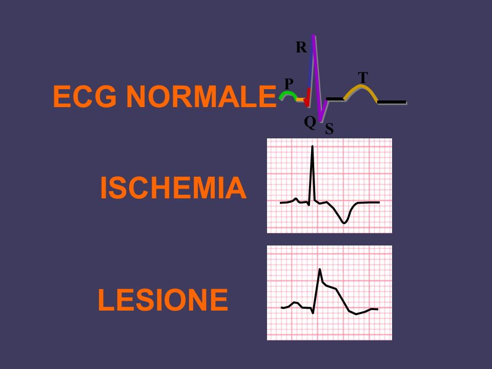 ECG NORMALE ISCHEMIA LESIONE