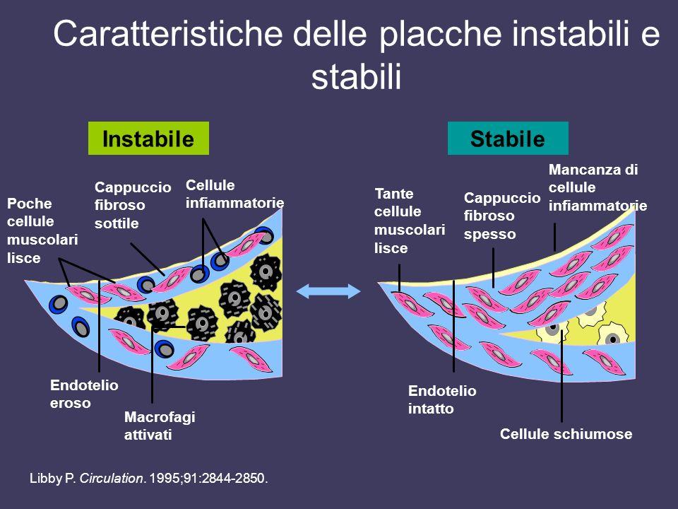 Caratteristiche delle placche instabili e stabili